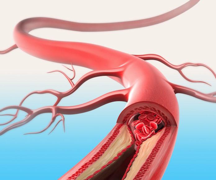 Артериосклероз вен