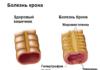 болезнь крона схема