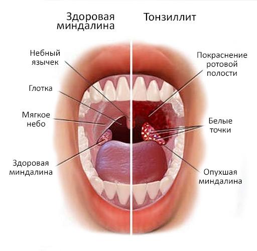 танзиллит