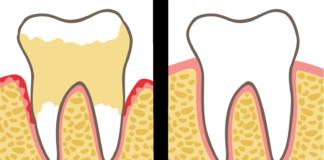 плохин зубы