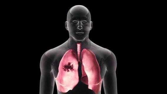 Эмболия легочной артерии симптомы и лечение | Мое здоровье