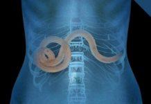 кишечные черви