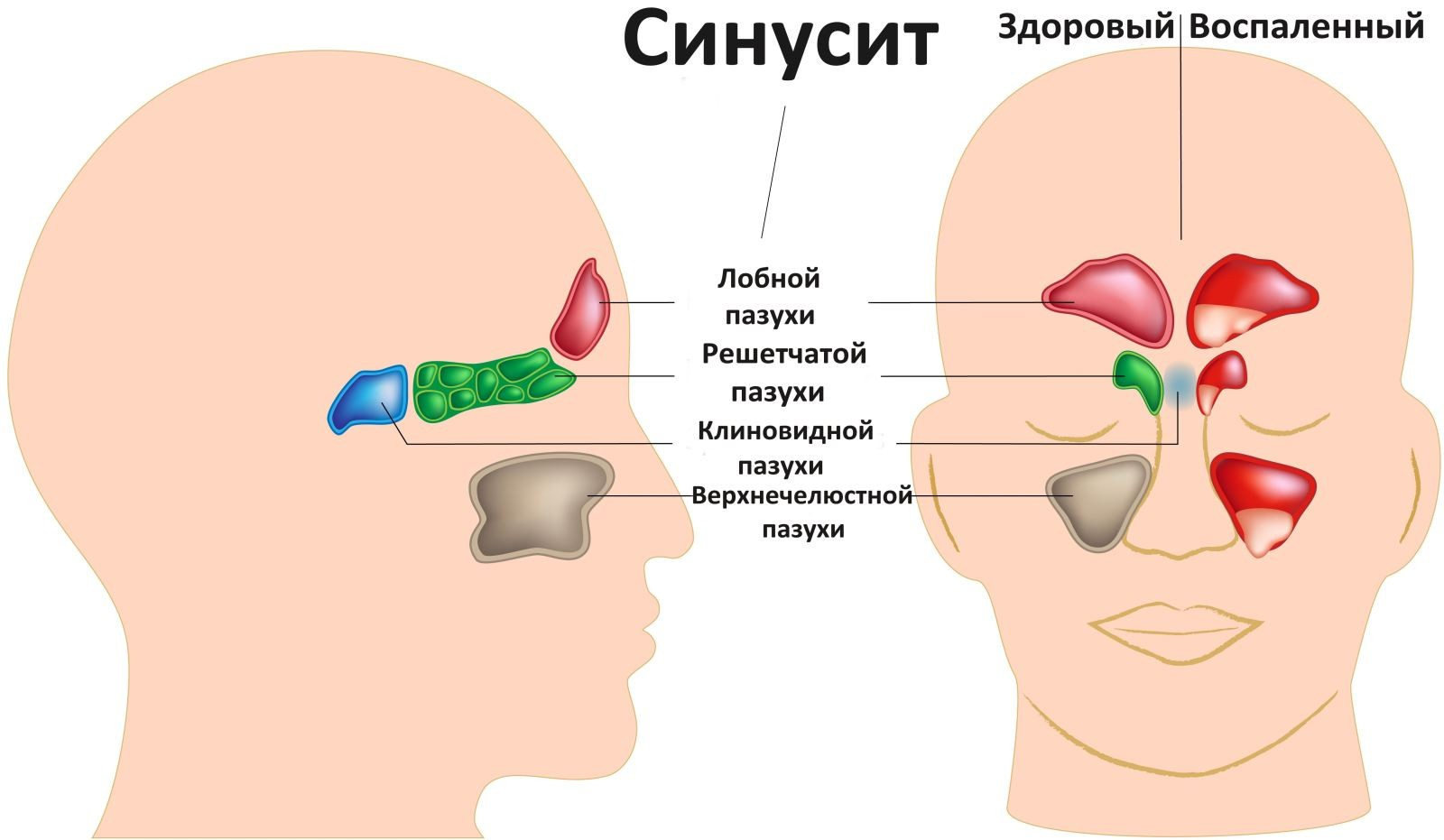 синусит