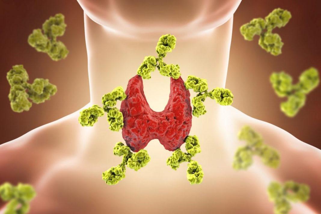 Больная щитовидная железа Хасимото