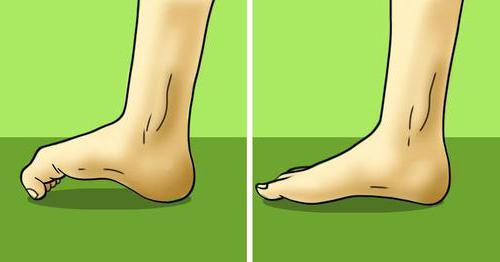 физиотерапия для ног