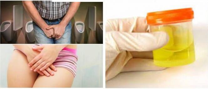 Жжение при мочеиспускании у женщин и мужчин: причины и лечение