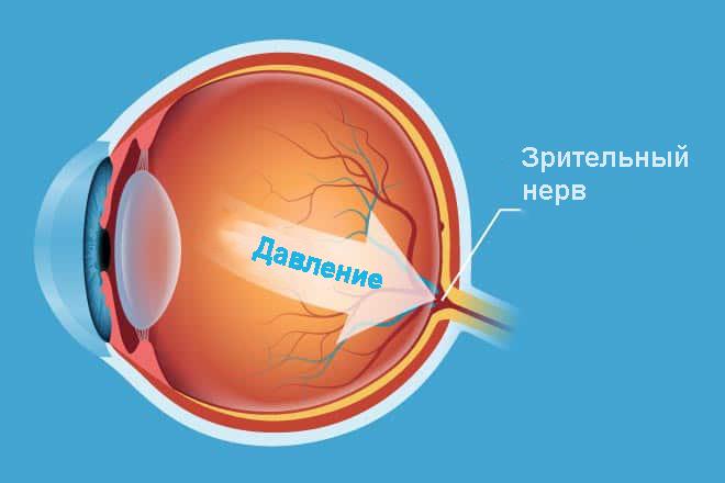 Оптическое повреждение при внутриглазном давлении
