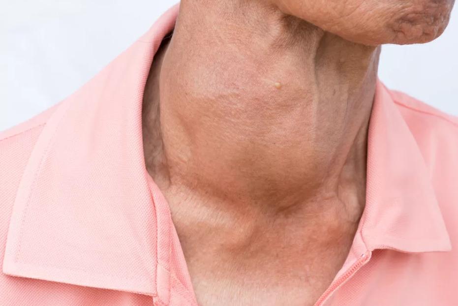 Зоб щитовидной железы: узловой и паренхиматозный. Почему щитовидная железа увеличена?