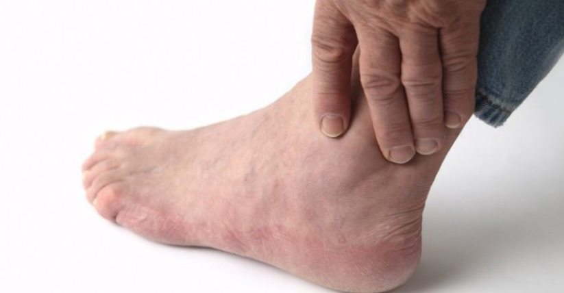 Опухшие ноги: средства и решения