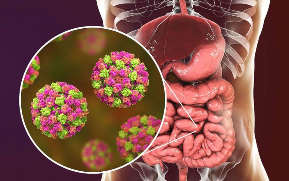Домашние средства от желудочного гриппа