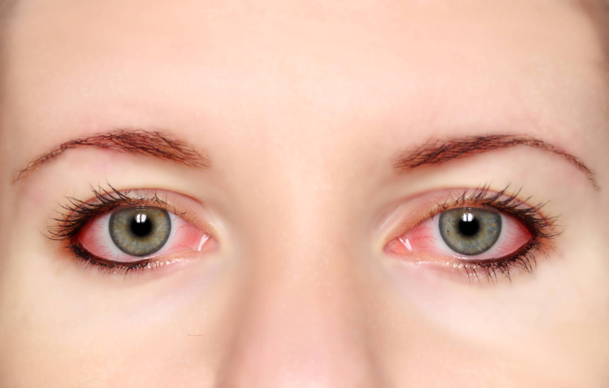 Красные глаза, которые зудят